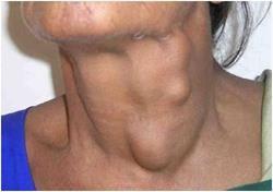 Розростання в області шиї