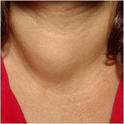 Що це таке колоїдний вузол щитовидної залози і як його лікують