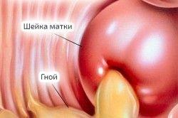 Гонорея як причина коричневих виділень при менструації