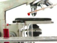 Норма лейкоцитів в крові у жінок