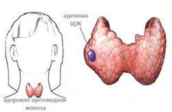 Що таке аденома щитовидної залози, її види та лікування