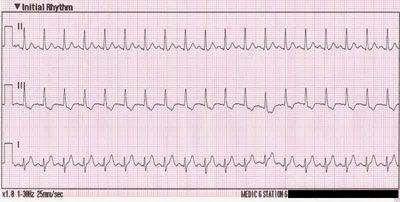 кардіограма при синусової тахікардії