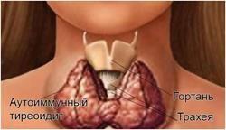Аутоімунний тиреоідит