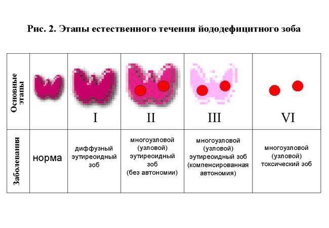 Що таке гіперплазія щитовидної залози