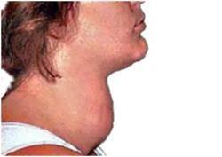 Що таке гіпертиреоз: клінічні прояви, симптоми і лікування