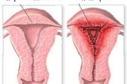 Схема ендометріозу матки