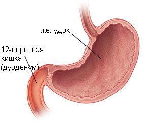 дислокація захворювання
