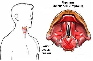 запалення гортані