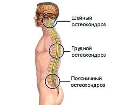 Що це за хвороба остеохондроз