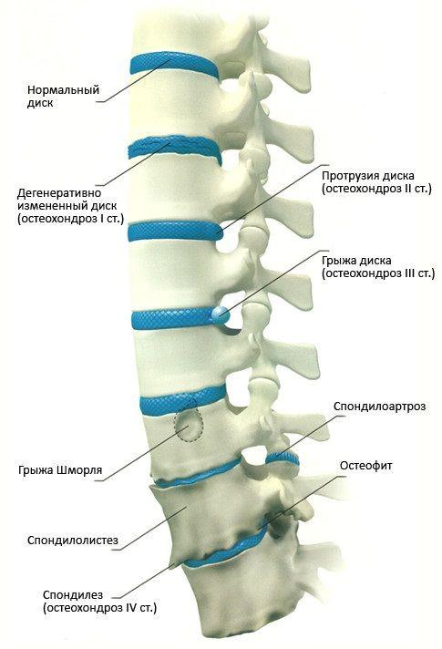 Стадії розвитку остеохондрозу