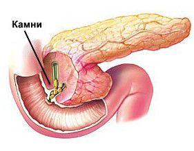 Що таке гострий панкреатит