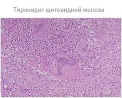 Тиреоїдит щитовидної залози