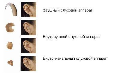 Слухові апарати різного раполаженія