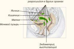 Проблема зовнішнього ендометріозу
