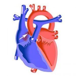 Дефект міжпередсердної перегородки серця у дітей і дорослих: причини, симптоми, як лікувати