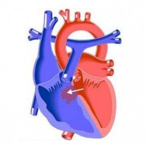 Дефект міжшлуночкової перегородки серця (дмшп): причини, прояви, лікування