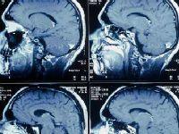 Діагностичні можливості мрт судин мозку