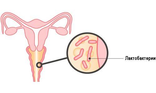 Діагностика і лікування гарднереллеза (бактеріального вагінозу)