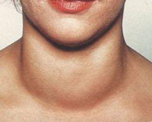 збільшена щитовидка