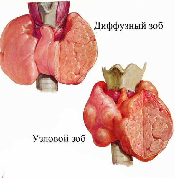 Дифузний токсичний зоб 1 і 2 ступеня: причини, прояви, діагностика та лікування