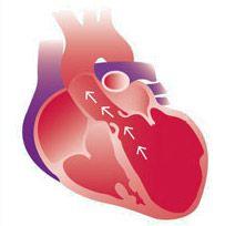 Дилатація камер серця, аорти - передумови, симптоми, діагностика, лікування