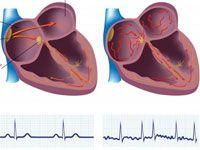 Миготлива (мерехтлива) аритмія серця