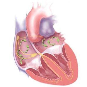 Фібриляції серця: форми, ознаки, причини, перша допомога і терапія