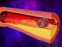 Тромбофлебіт глибоких вен ніг і його лікування