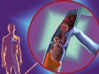 Тромбоз глибоких вен і його лікування