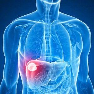 Гемангіома печінки: виникнення, симптоми, як лікувати, прогноз