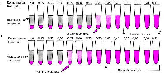 Гемоліз: суть, види, фізіологічний і патологічний, гострий і хронічний