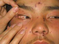 Геморагічна хвороба або патологічна кровоточивість