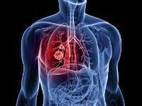 Симптоми легеневої кровотечі та надання першої допомоги