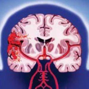 Геморагічний інсульт головного мозку: види, симптоми, діагностика, лікування, фактори ризику
