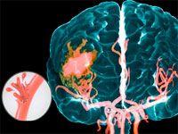 Геморагічний інсульт головного мозку