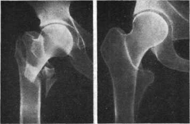 Чрезвертельний перелом стегна