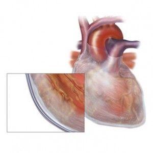 Гідроперикард: виникнення, симптоми, форми (малий, виражений), як лікувати