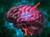 Звуження судин головного мозку