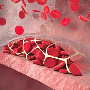 Гиперкоагуляция (гиперкоагуляционного синдром): причини, форми, симптоми, аналізи, лікування