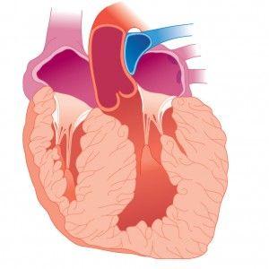 Гіпертрофія міокарда шлуночків серця, передсердь: ознаки, причини, лікування, локалізації