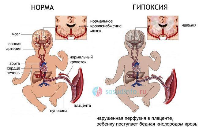 гіпоксія головного мозку у плода