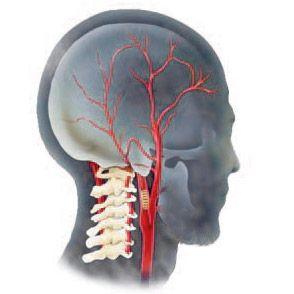 Гіпоплазія хребетної артерії: ознаки, лікування, наслідки