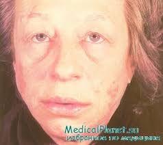 хвора жінка