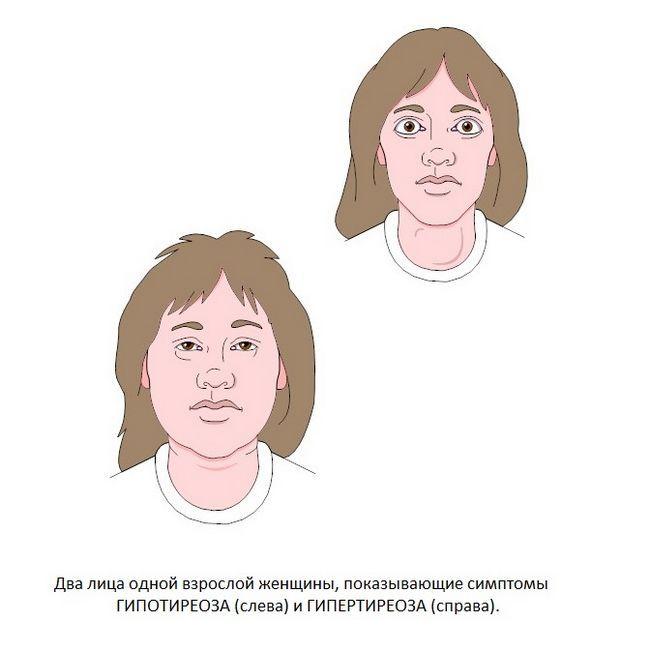 особи жінок з гіпотиреозом і гіпертиреоз