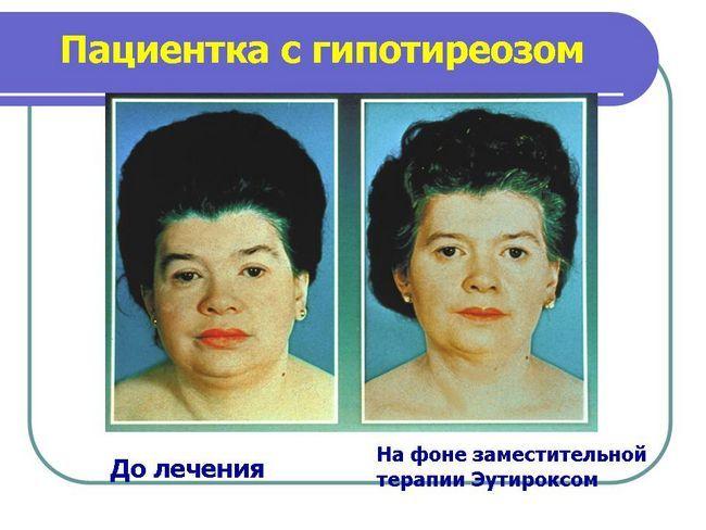 жінка з гіпотиреозом