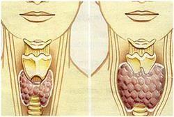Гіпотиреоз - захворювання, що розвиваються при недостатньому виробленні гормонів щитовидної залози