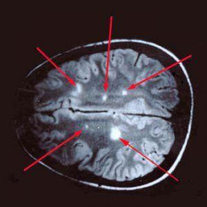 Глиоз головного мозку: причини, ознаки, діагностика, лікування