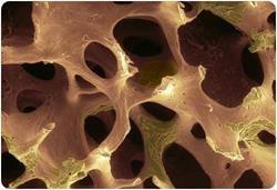 кісткова маса