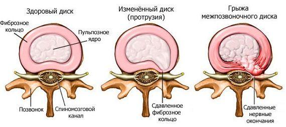 Грижа міжхребцевого диска: характерні ознаки