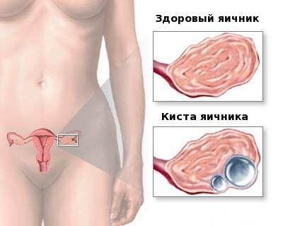 Характер ниючих болів внизу живота у жінок і чоловіків